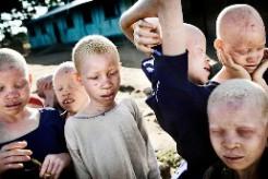 Albinos, victimes de rituels en Afrique