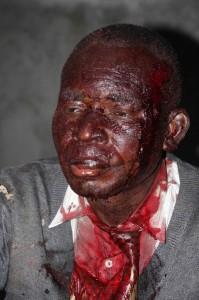 Un militant blessé après le meeting de l'opposition